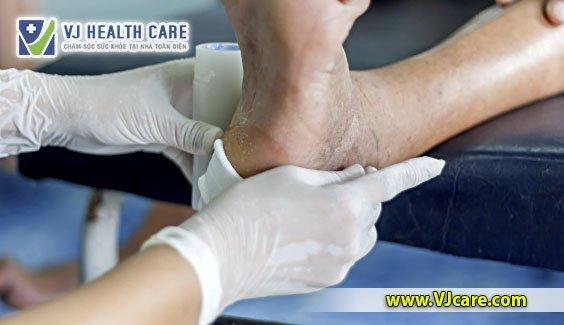nguyên tắc thay băng rửa vết thương của điều dưỡng chăm sóc vết thương  Thay băng tại nhà và những điều cần lưu ý khi tự làm nguy  n t   c thay b  ng r   a v   t th    ng c   a   i   u d     ng ch  m s  c v   t th    ng
