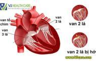 Hở van tim mức độ 1/4 có nguy hiểm không?
