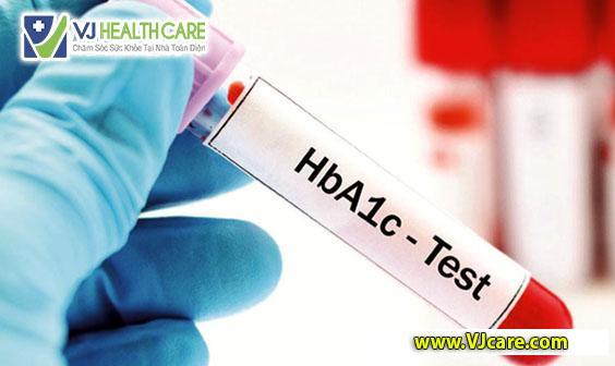 xét nghiem tieu duong xet nghiem duong huyet xet nghiem hba1c  3 xét nghiệm cần thiết đối với bệnh nhân tiểu đường x  t nghiem tieu duong xet nghiem duong huyet xet nghiem hba1c