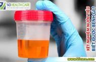 Xét nghiệm nước tiểu biết được bệnh gì ?