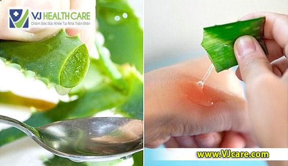 Cách chữa bỏng nước sôi bằng lô hội Cách chữa bỏng nước sôi bằng nha đam