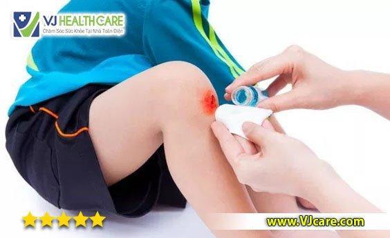 rửa vết thương và sát trùng thay băng rửa vết thương chăm sóc vết thương