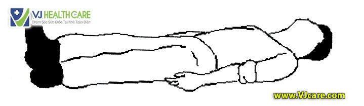 Tư thế an toàn cho bệnh nhân cấp cứu Tư thế nằm ngửa đầu bằng 1