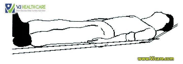 Tư thế an toàn cho bệnh nhân cấp cứu Tư thế nằm ngửa đầu cao 3