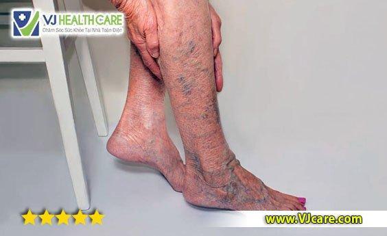 Suy giãn tĩnh mạch chân là gì? Có nguy hiểm không ?