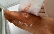 Số ca nhập viện vì 'vi khuẩn ăn thịt người' tăng nhanh ở Đà Nẵng