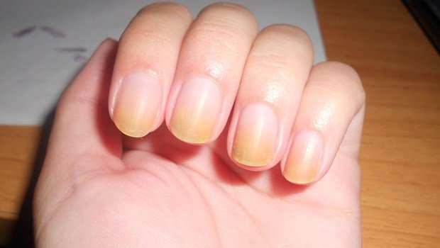 How To Get Rid Of Yellow Nails From Nail Polish 10 Fast Cures