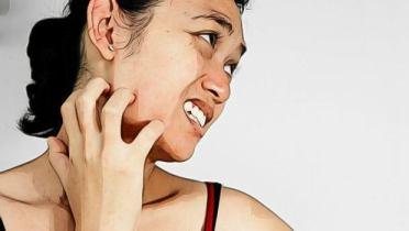 Image result for lupus arthritis pictures