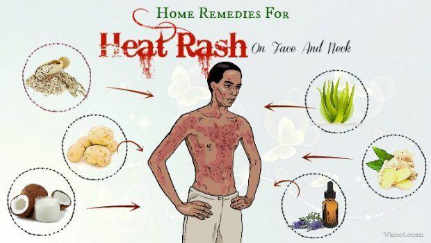 Heat And Rash Neck Face