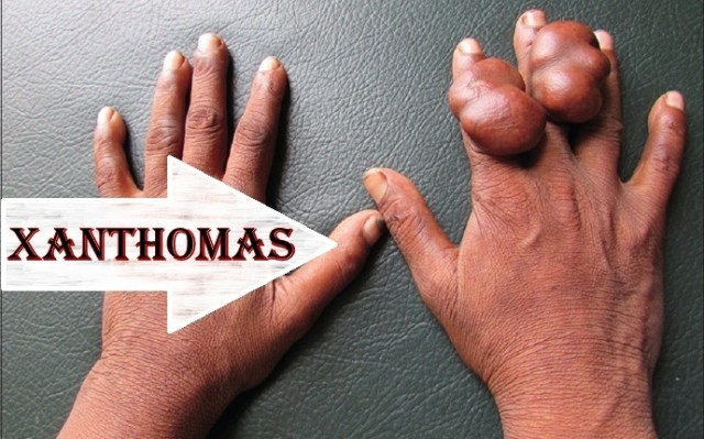 signs of high triglycerides - xanthomas