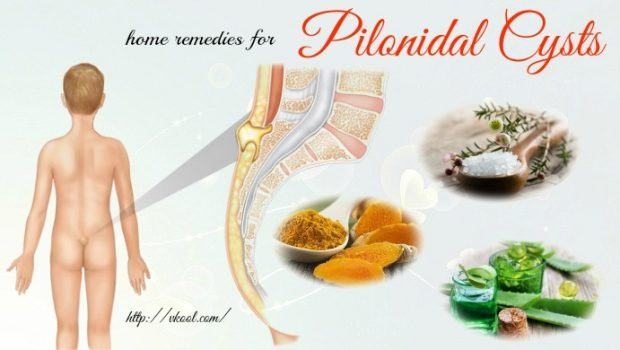 Image result for pilonidal cyst