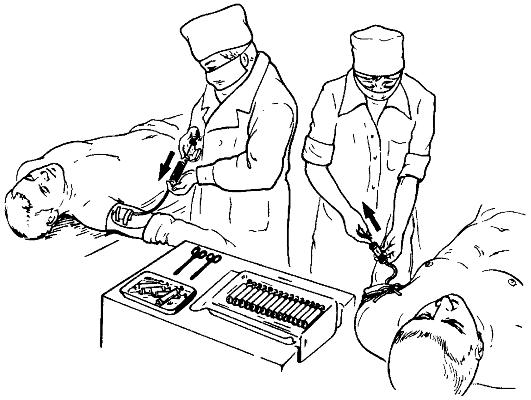Cum se identifică și se oprește sângerarea intestinală acasă
