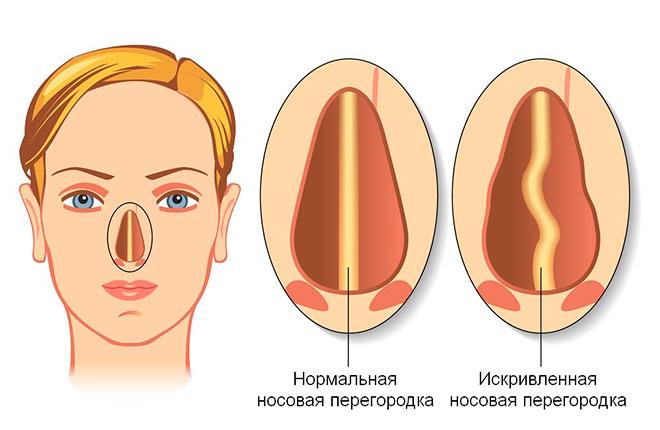 нормальная носовая перегородка и ее деформация