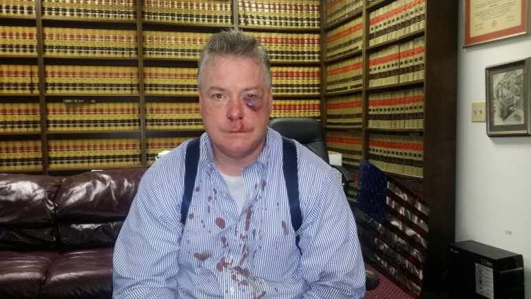 A District Attorney's office investigator beat defense attorney James Crawford following an exchange of insults between the two men, according to Crawford's attorney, Jerry Steering.