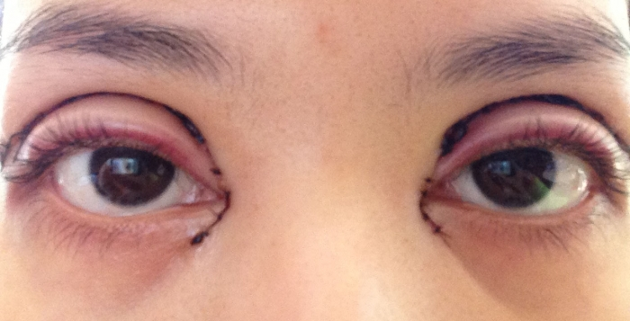 Blepharoplasty Vs Eyelid Tightening - VoltaicPlasma ...