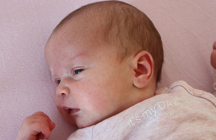 baby-acne