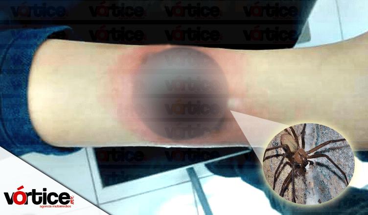 Araña violinista muerde a campesino; está grave en el hospital