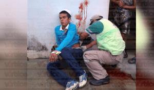 Estudiante del Cobach recibe tres puñaladas en la espalda durante asalto