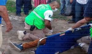 Casi pierde las piernas un pequeño al ser arrollado por un automóvil en El Jobo