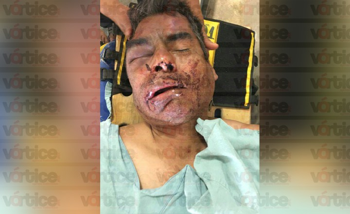 Presunto trabajador de la FGE casi mata a golpes a vigilante