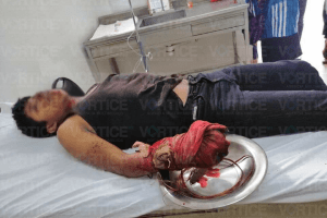 Cohetón le destroza la mano a joven en San Juan Cancuc