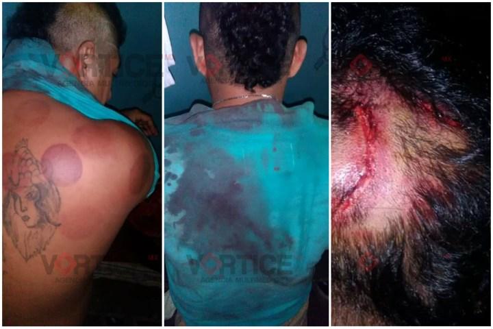 Internos golpean a otro reo con presunta complicidad de guardias