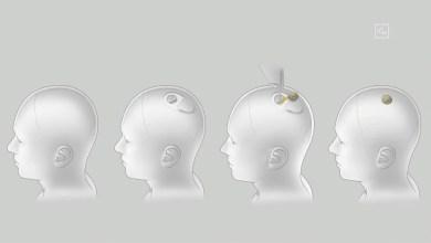 neuralink_cip implatacia_elon musk