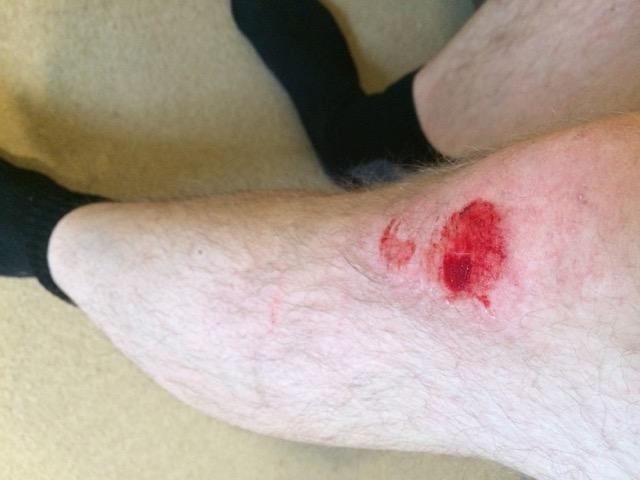 Luckily, minor injury to my knee