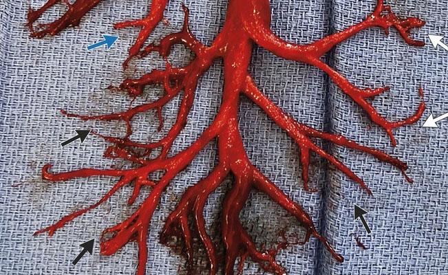 Hombre expulsa un coágulo de sangre con forma de árbol al toser