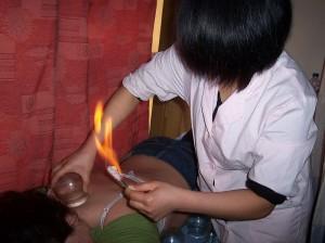 Médecine traditionnelle chinoise : vertus thérapeuthiques des ventouses 1