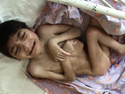 Orphelinat en roumanie braila enfant handicapé