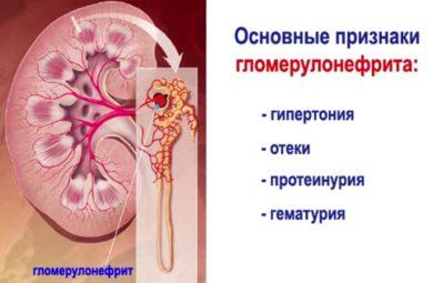 Instrukcje dotyczące stosowania aspiryny. Aspiryna serca i instrukcje dotyczące jego użycia.