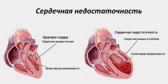 Принципы лечения застойной сердечной недостаточности