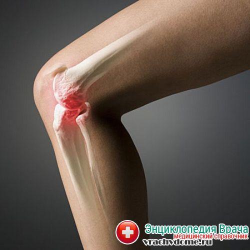 артроз коленного сустава фото