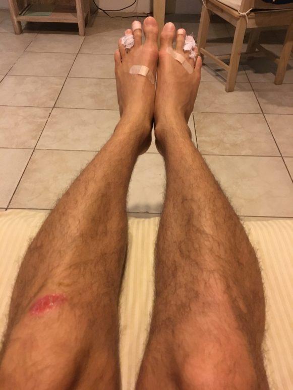 Поцарапанная коленка, стертые пальцы ног