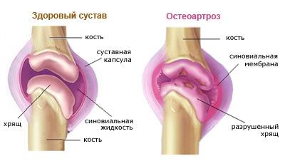deformáló artrózis az ízületben