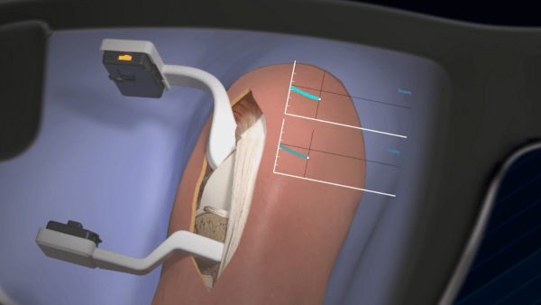 The AR glasses that come with NextAR allow the surgeon to visualise surgical actions and information in real-time, directly on the operative field