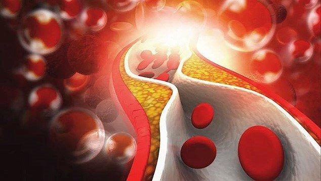 a28e6fd75e3 Mida on vaja kolesterooli vähendamiseks. Kolesterooli vähendamine ...