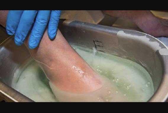 гъбичките по краката