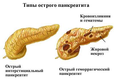 pierderea în greutate provoacă pancreatită