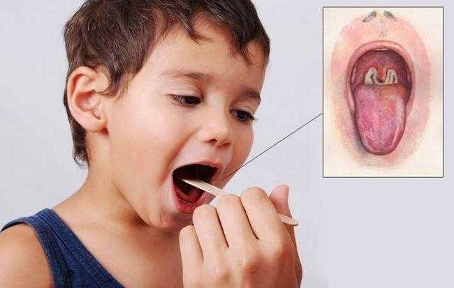 Ребенок заболел дифтерией.
