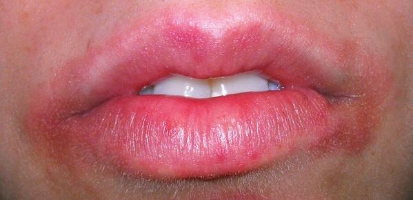 Губы будто немеют: что делать? Почему появляется покалывание губ Онемело пол губы