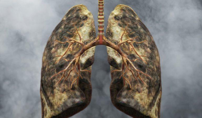 Какие продукты помогают восстановить легкие курильщиков