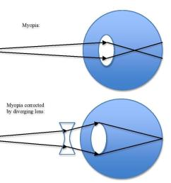 if the eyeball is too long myopia can be corrected using a concave i e diverging lens which will increase the focal length as shown in the figure  [ 1241 x 858 Pixel ]