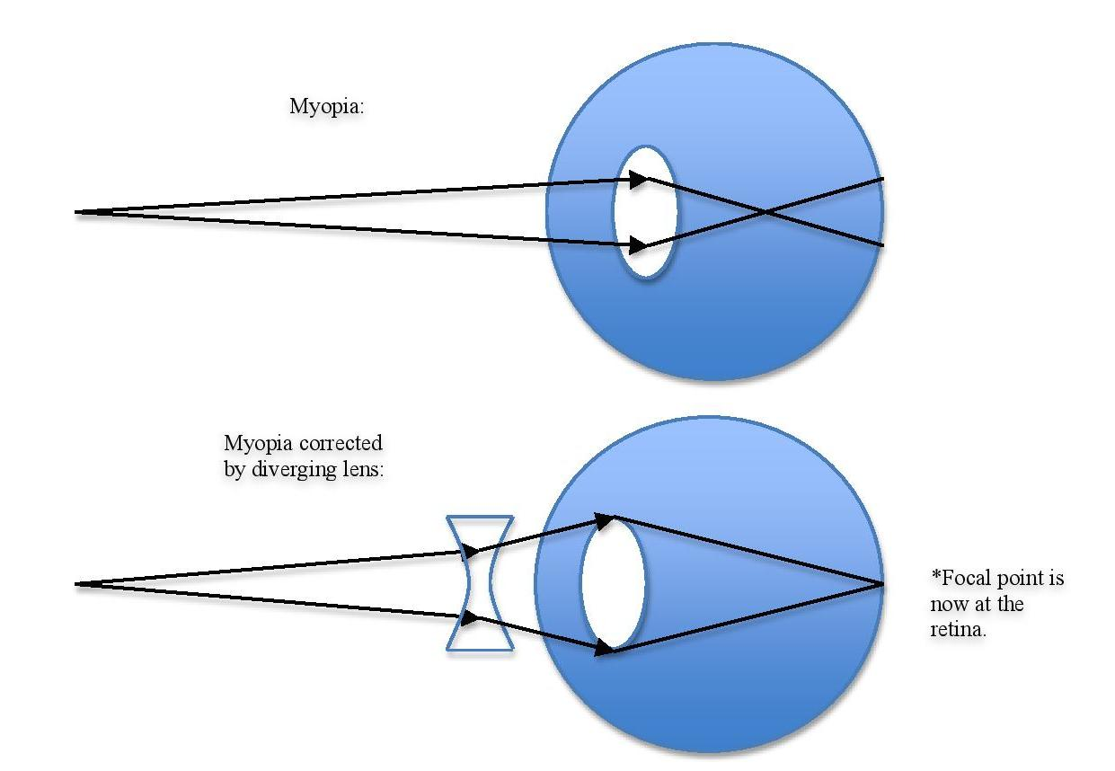 hight resolution of  if the eyeball is too long myopia can be corrected using a concave i e diverging lens which will increase the focal length as shown in the figure