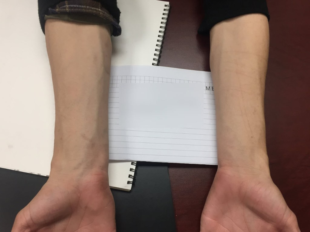 Shows the wrist of a domestic violence suspect. Pictures are imporant to beat domestic violence charges
