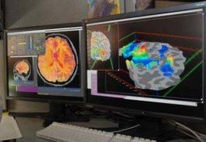 brain, creativity
