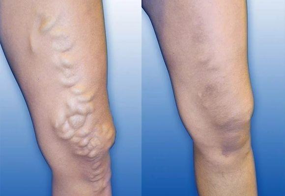 Уплотнение после удаления вены. Уплотнение на вене: как избавиться от узлов на ногах