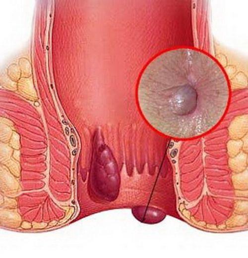 hemorojaus operacija