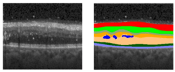 ReLayNet: Retinal Layer and Fluid Segmentation of Macular Optical Coherence Tomography using Fully Convolutional Network